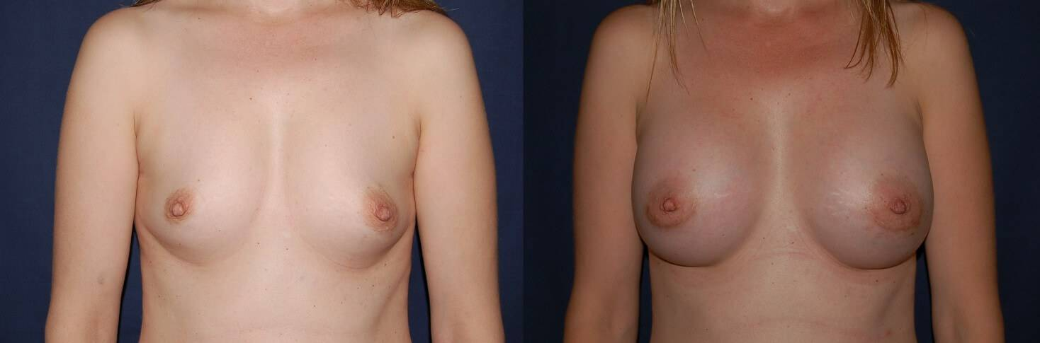 138 Breast Enlargement Before & After Photo