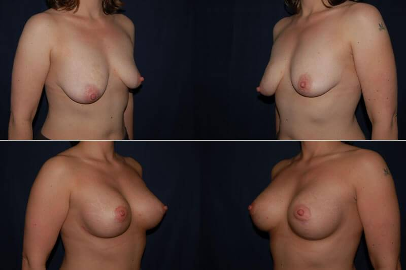 Breast Lift with Implants Pre-op (top) | Post-op 1 year (bottom): 286cc silicone gel implants | 34yrs | 5'5