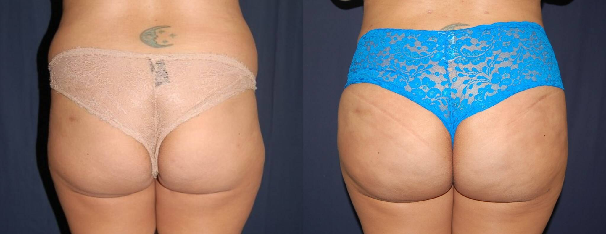 Brazilian Butt Lift Before And After Pictures 111