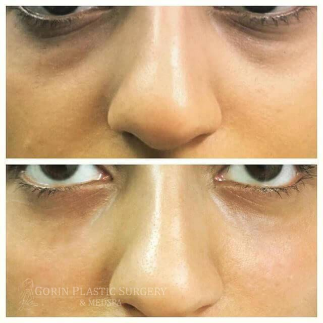 before and after nose treatment