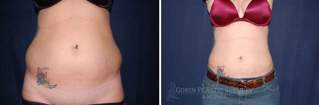 Liposuction before and after 22