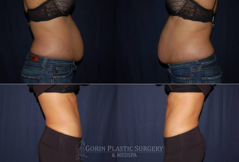 Tummy tuck before and after 83