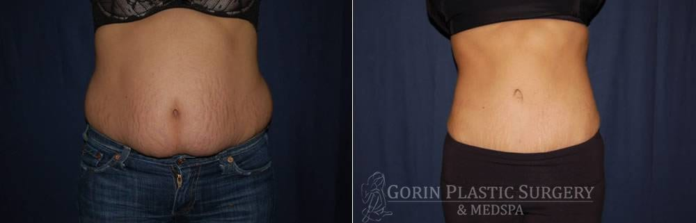 Tummy tuck before and after 82