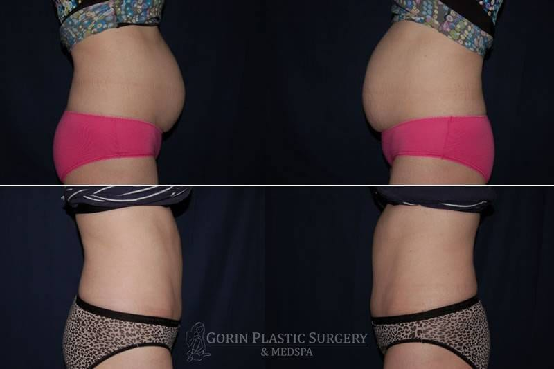 Tummy tuck before and after 43