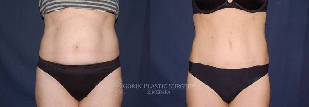 Tummy tuck before and after 24