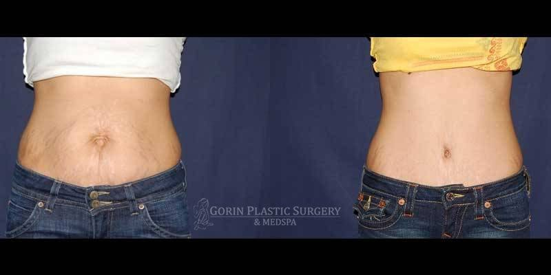 Tummy tuck before and after 79