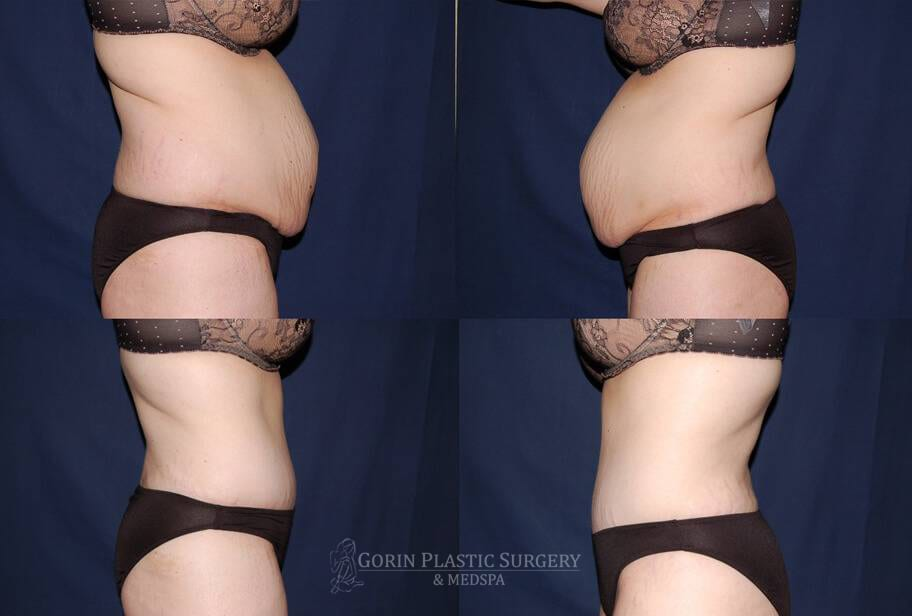Tummy tuck before and after 16