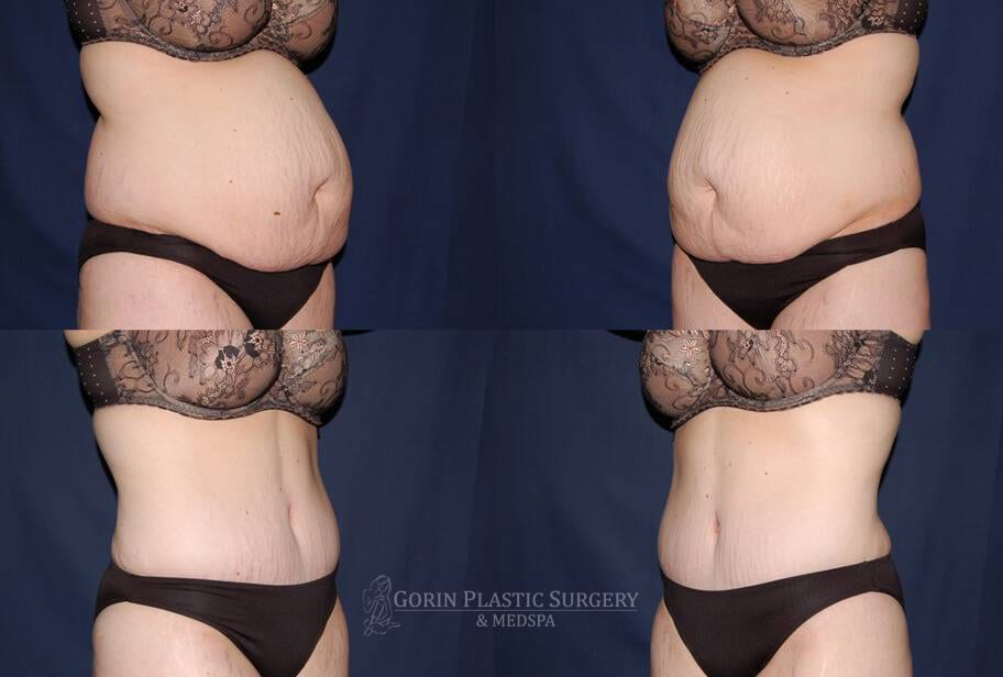 Tummy tuck before and after 15
