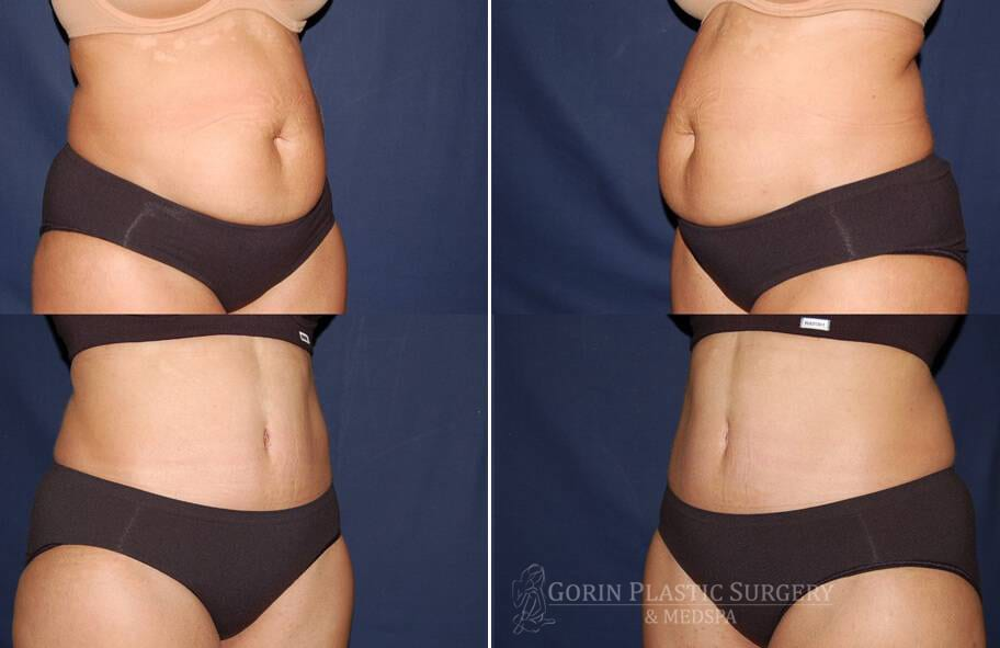 Tummy tuck before and after 4