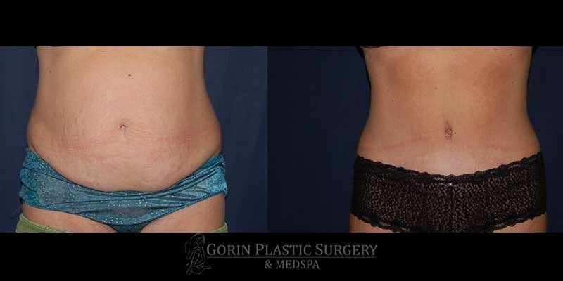 Tummy tuck before and after 3