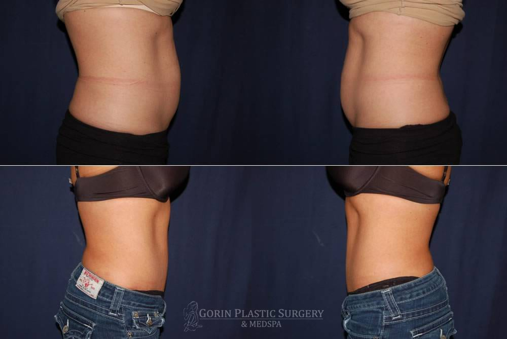 Tummy tuck before and after 78