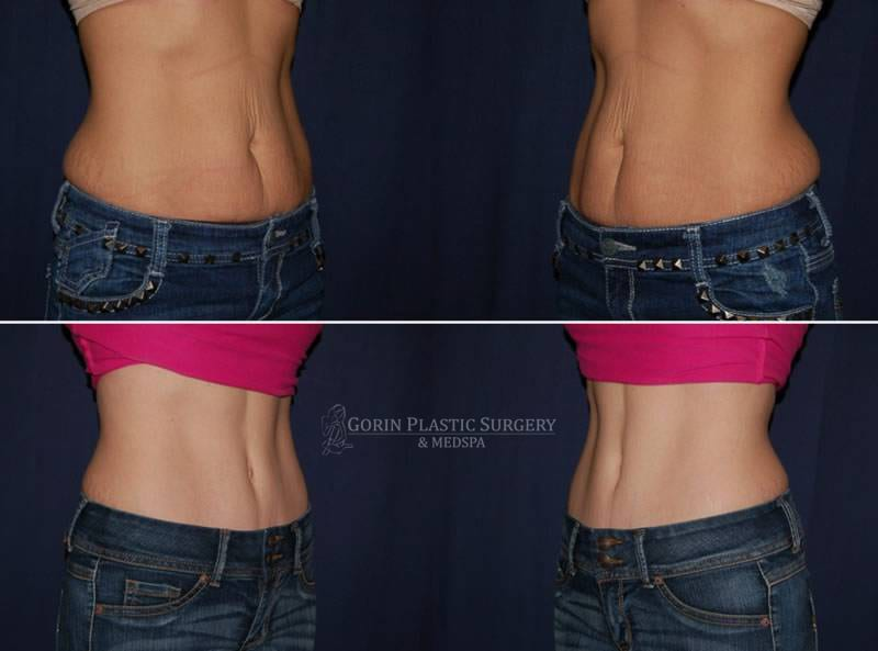 Tummy tuck before and after 61