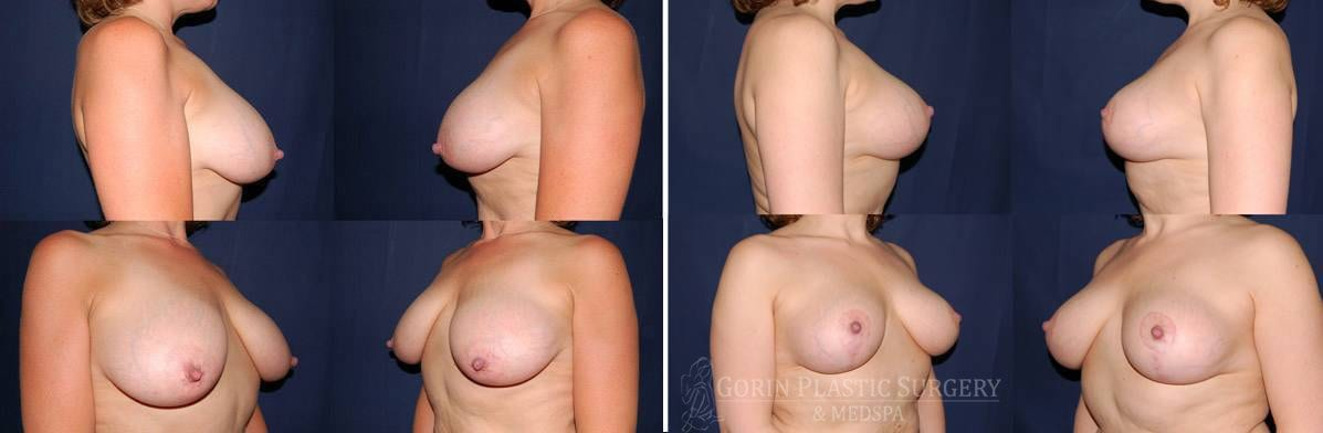 breast lift with augmentation before and after oblique view 21