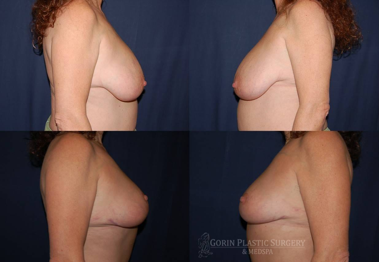breast lift with augmentation before and after side view 10