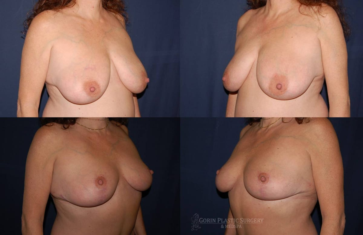 breast lift with augmentation before and after oblique view 10