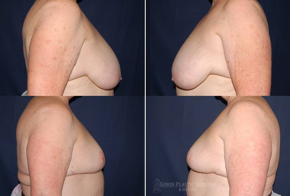breast lift with augmentation before and after reconstruction