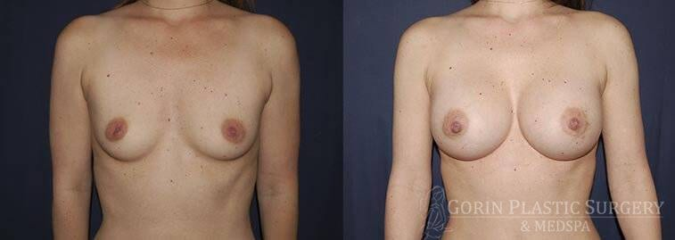 breast augmentation frontal view 8