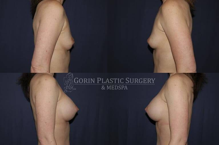 breast augmentation before and after side view 6