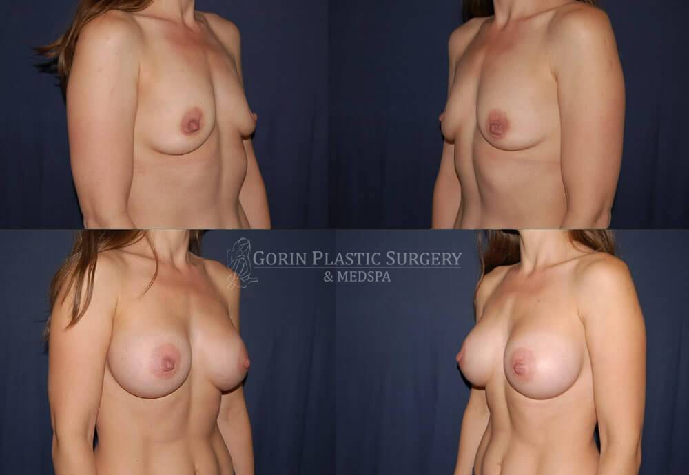 breast augmentation before and after oblique view 29
