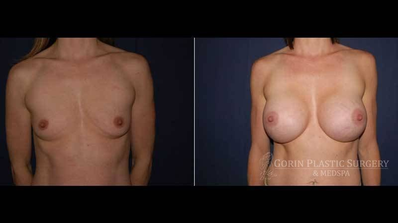 breast augmentation before and after front view 29