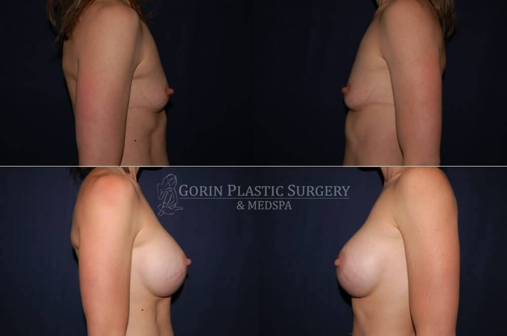 breast augmentation before and after side view 28