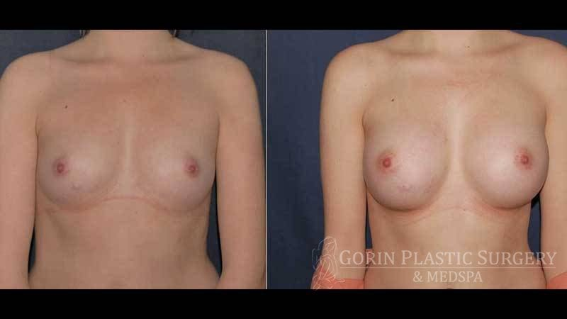 breast augmentation before and after front view 27