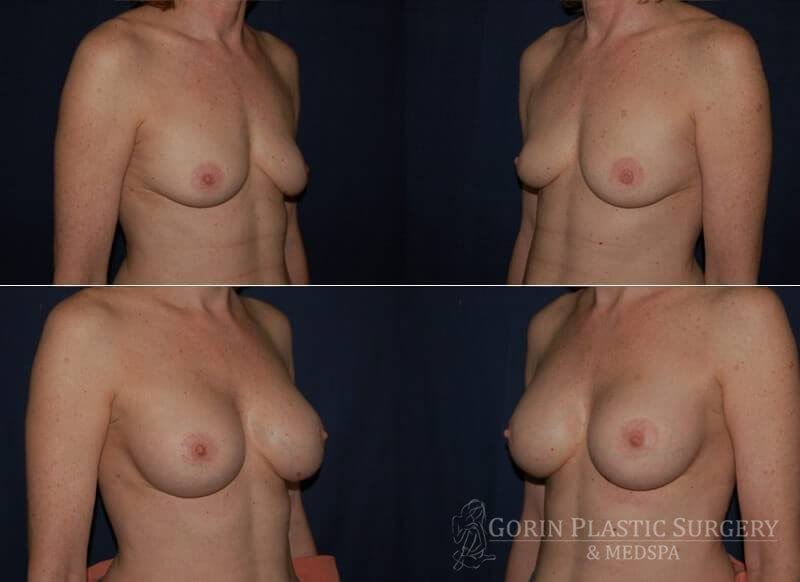 breast augmentation before and after oblique view 24