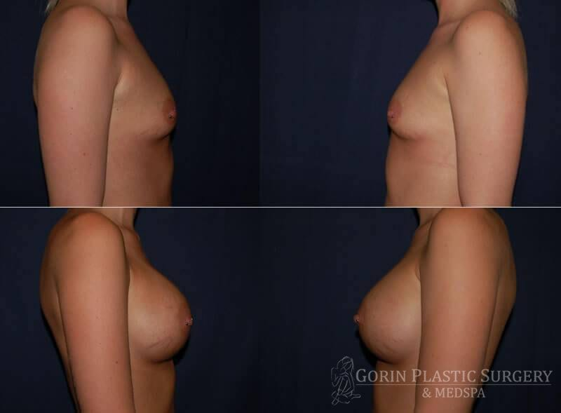 breast augmentation before and after side view 23