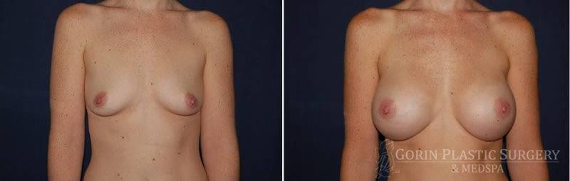 breast augmentation before and after front view 21