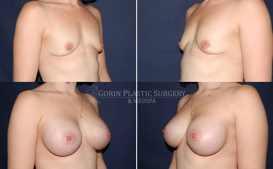 breast augmentation before and after oblique view 16