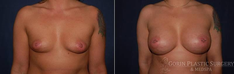 breast augmentation before and after frontal view 12