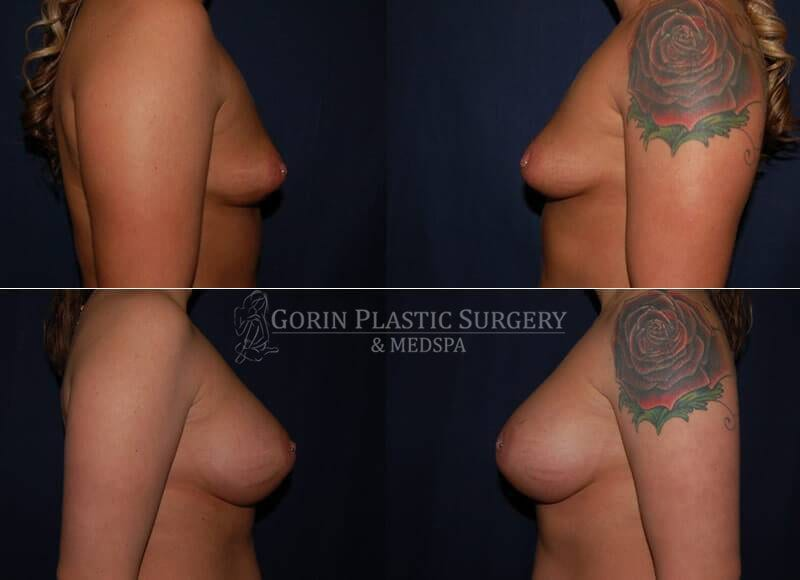 breast augmentation before and after side view 11