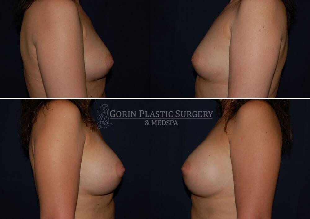breast augmentation before and after side view 37