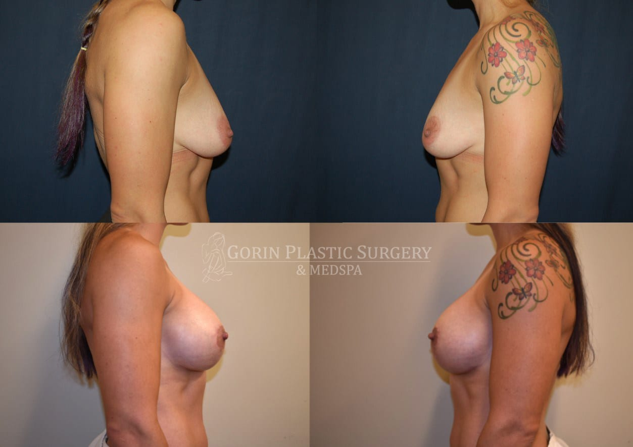 breast augmentation before and after side view 60