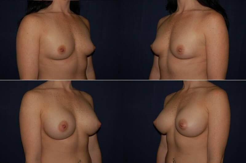 breast augmentation before and after oblique view 7
