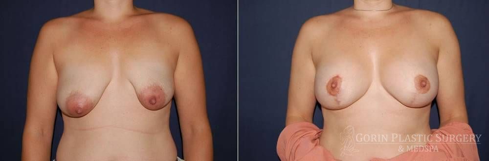 breast augmentation before and after with lift front view