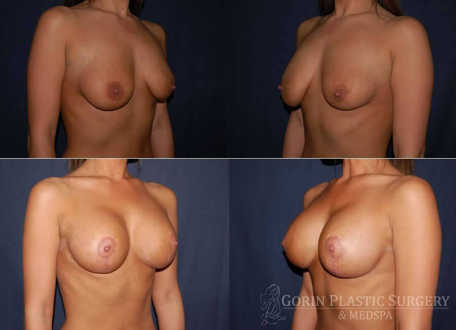 breast augmentation with lift before and after oblique view 6