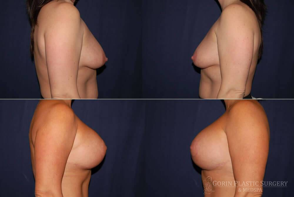 breast augmentation with lift before and after front view 53