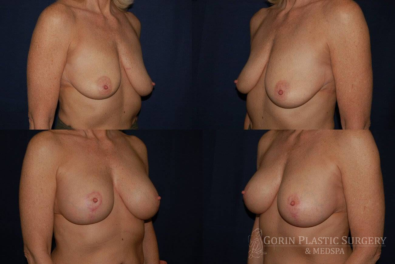 breast augmentation with lift before and after oblique view 3