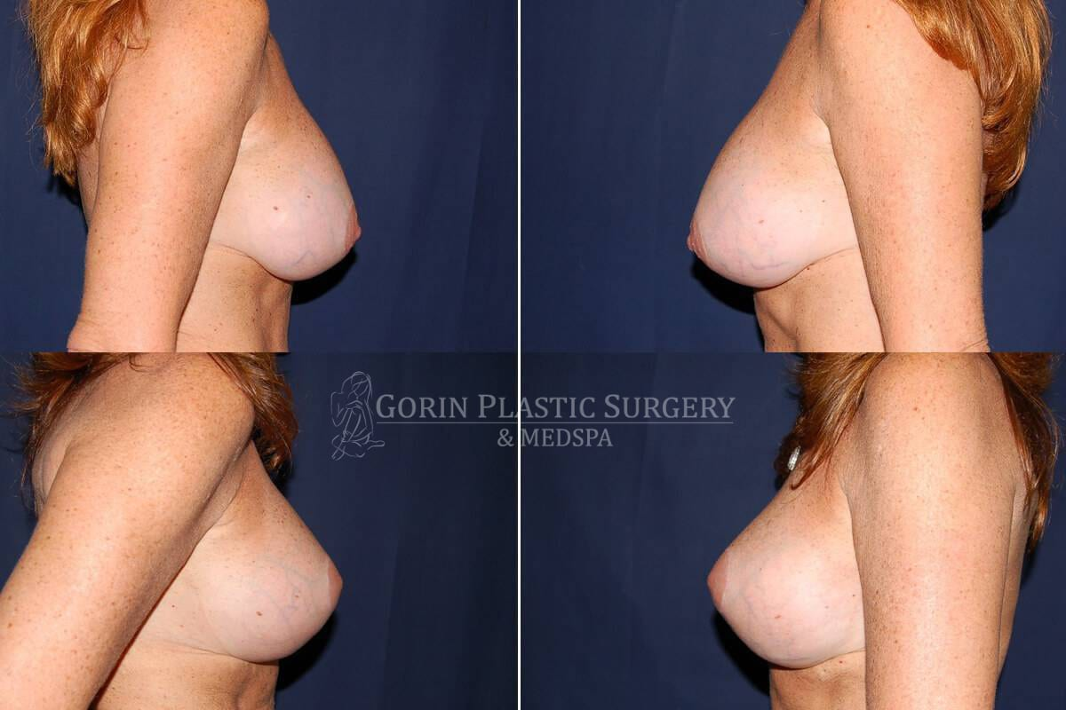 breast augmentation before and after side view 47