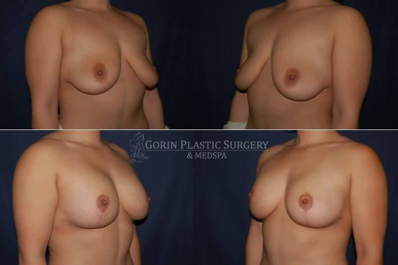 breast augmentation before and after oblique view 5