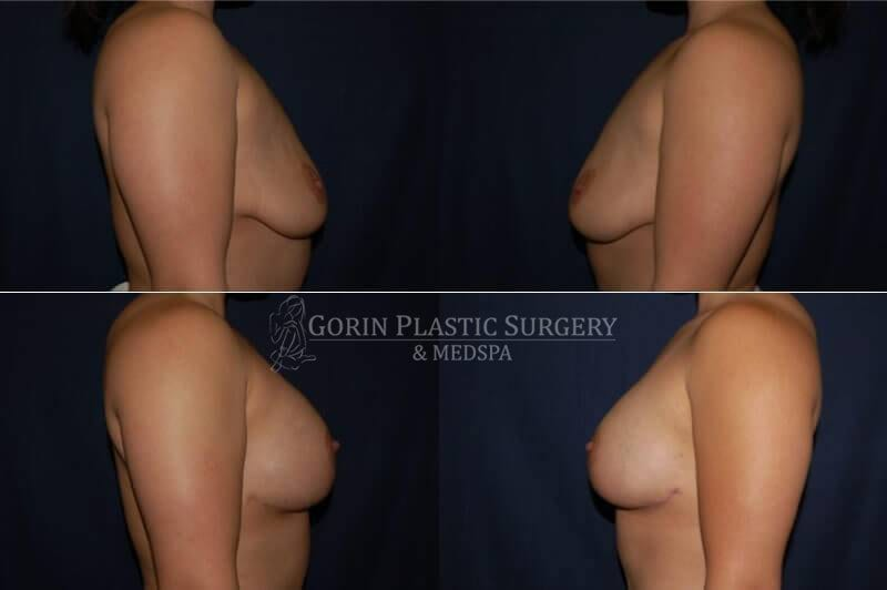 breast augmentation before and after side view 45