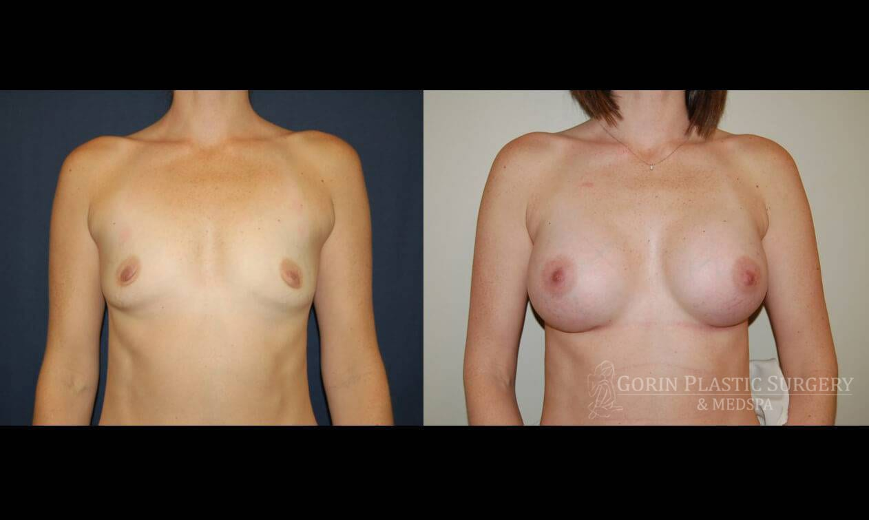 breast augmentation before and after frontal view 6