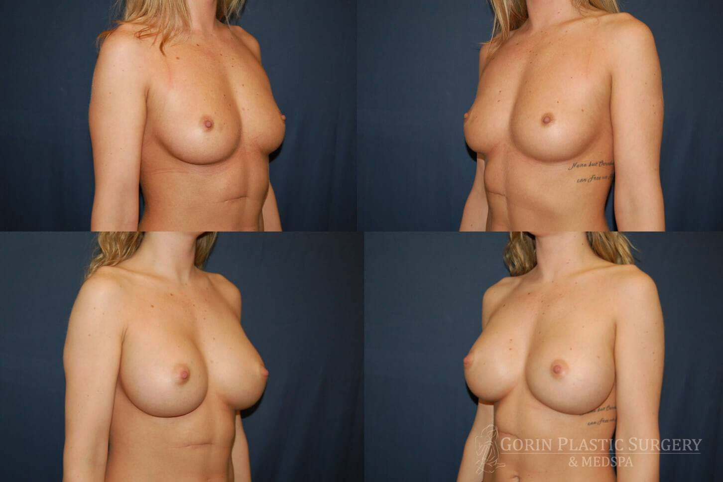 before and after oblique view 2