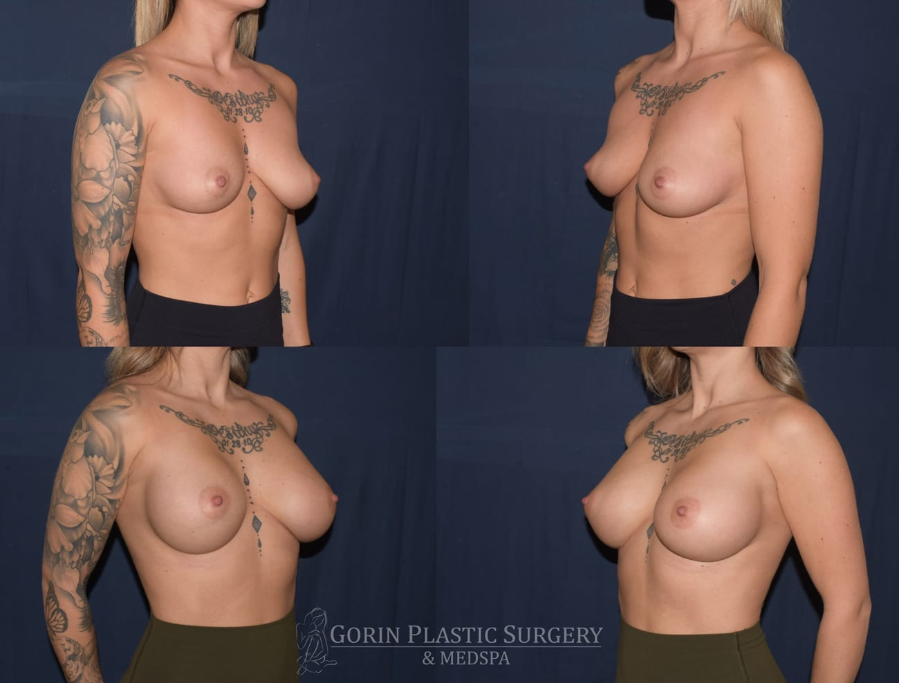 breast augmentation patient 5 oblique before and after photo