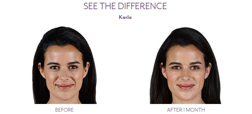 Juvederm Vollure before and after patient